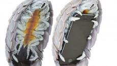smart-phone-caseeee